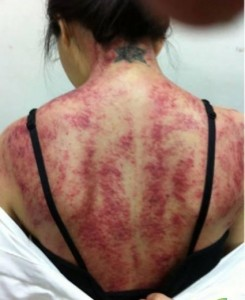 Prominenter Rücken nach einer Gua-Sha-Behandlung