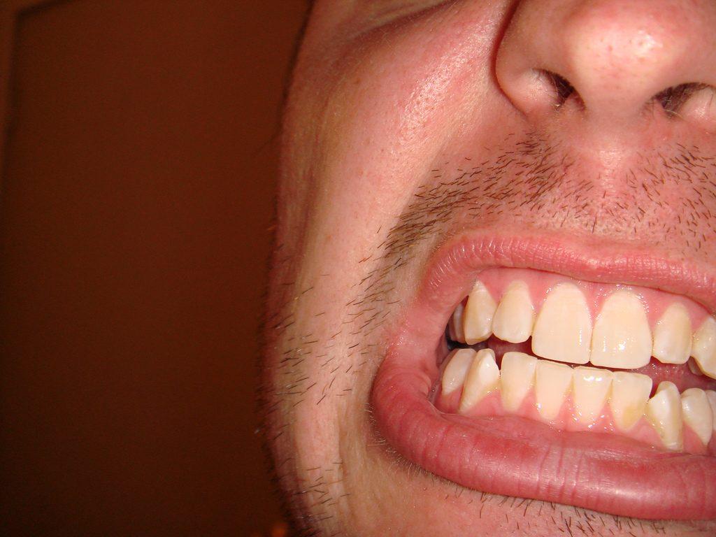 Beginnender Zahnfleischschwund bei einem jungen Mann. Foto (C)Gregg O´Connell / flickr BY CC 2.0